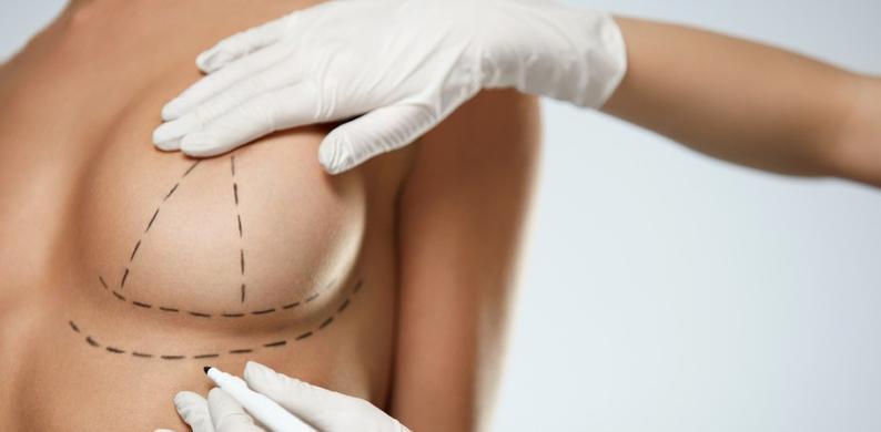 Calm your tits: explantatie petitie