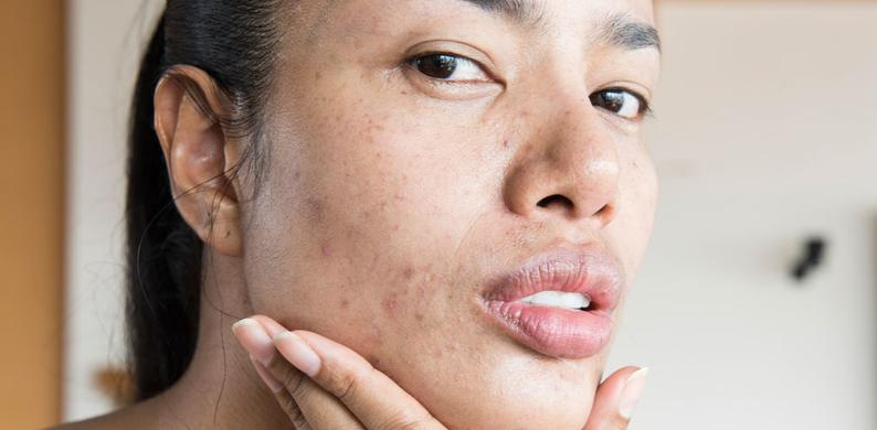 acne positive influencers