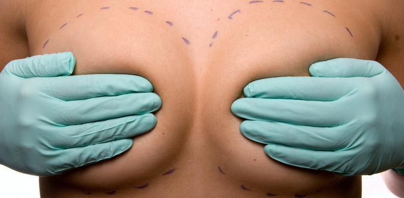 borstimplantaten schadelijk embryo